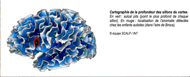 Image ++ cerveau autisme